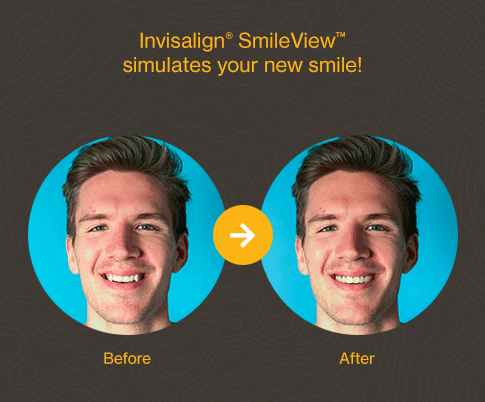 The SmileView App, Ferris Lane Dental